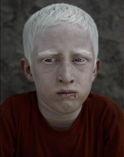 Afghan albino boy in Kabul portrait by photographer Kenneth Rimm
